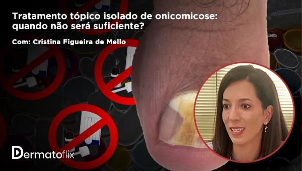 Tratamento tópico isolado de onicomicose: quando não será suficiente?  - Cristina Figueira de Mello