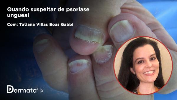 Quando suspeitar de psoríase ungueal - Tatiana Villas Boas Gabbi
