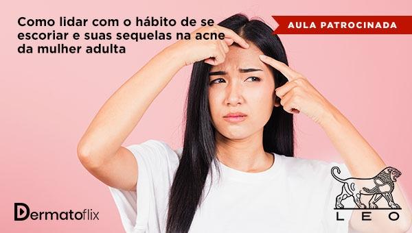 Como lidar com o hábito de se escoriar e suas sequelas na acne da mulher adulta