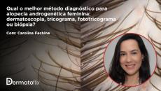 Qual o melhor método diagnóstico para AGAF: DSC, Tricograma, Fototricograma ou Biópsia? Dra Carolina Fechine