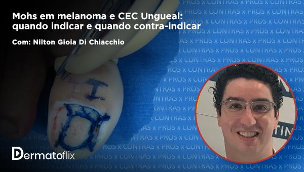 Mohs em melanoma e CEC Ungueal: quando indicar e quando contra-indicar - Dr. Nilton Gioia Di Chiacchio