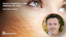 Acne e cicatrizes - o que sabemos de novo? Dr. Marco Rocha