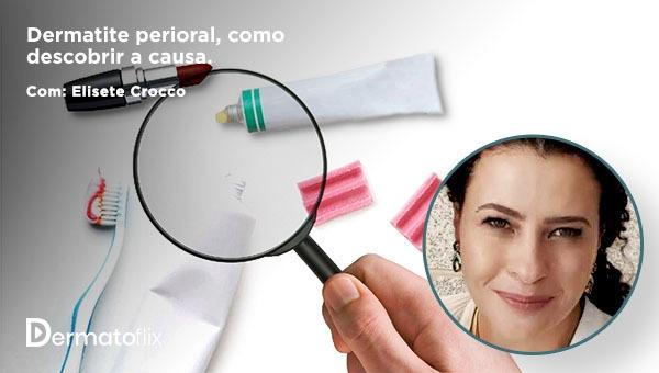 Dermatite perioral: como descobrir a causa? - Dra Elisete Crocco