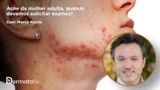 Acne da mulher adulta - quando solicitar exames? Dr. Marco Rocha