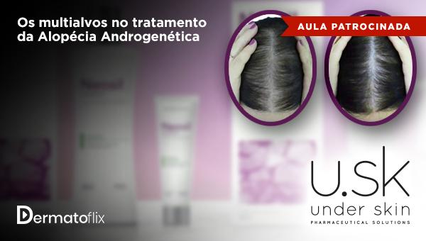 Os multialvos no tratamento da Alopecia Androgenética