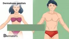 Dermatoses Genitais