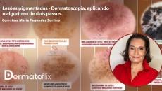 Lesões pigmentadas - Dermatoscopia: aplicando o algoritmo de dois passos.