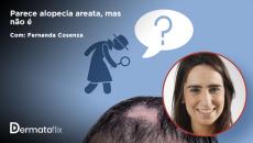 Parece alopecia areata, mas não é. Dra Fernanda Cosenza