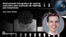 Padronização fotográfica da alopecia androgenética masculina  - Dr. Paulo Müller Ramos
