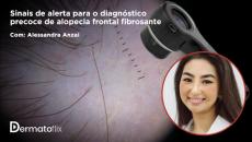 Sinais de alerta para o diagnóstico precoce de alopecia fontal fibrosante -  Dra Alessandra Anzai
