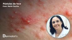 Pústulas na face: o que pensar além de acne, rosácea e dermatite perioral  - Dra Maria Cecília Rivitti Machado