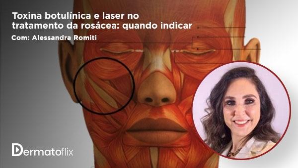 Toxina botulínica e laser no tratamento da rosácea: quando indicar - Dra Alessandra Ribeiro Romiti