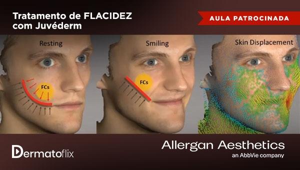 Tratamento FLACIDEZ com Juvéderm®