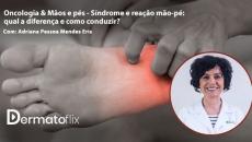 Oncologia & Mãos e pés - Síndrome e reação mão-pé: qual a diferença e como conduzir?