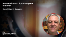 Melanoniquias: 5 pontos para lembrar!  - Dr. Nilton Di Chiacchio