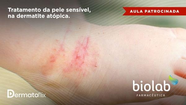 Tratamento da pele sensível na dermatite atópica