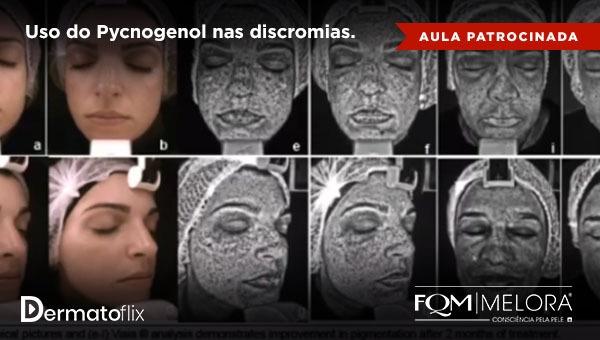 Uso do Pycnogenol nas discromias